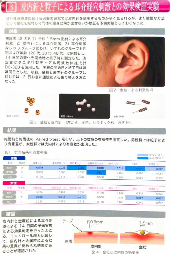 針、耳つぼダイエット、骨盤ダイエット、京都、京都市